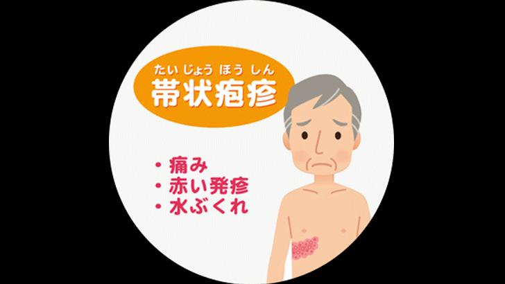 帯状疱疹は体が弱ってきているサイン!早期治療で悪化させない
